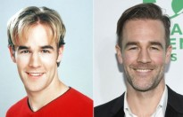 james van der beek ra sao sau dawsons creek